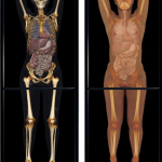 Virtual Dissection, Web and Mobile Device Enabled Apps Offer New Ways of Learning, Practicing Medical Sciences